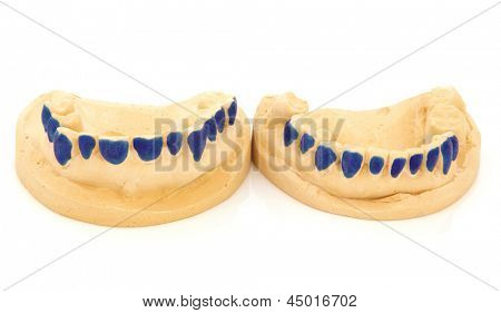 Dental teeth mould for tooth whitening gum shields over white background.