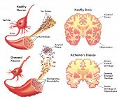 stock photo of neuron  - medical illustration of the symptoms of Alzheimer - JPG