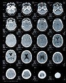Постер, плакат: человеческие головы МРТ