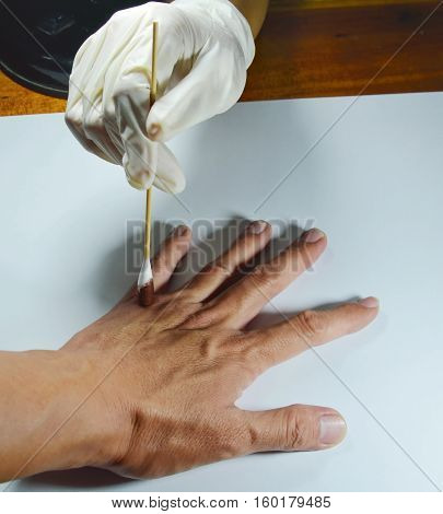 hand in medical rubber glove cleaning to the wound