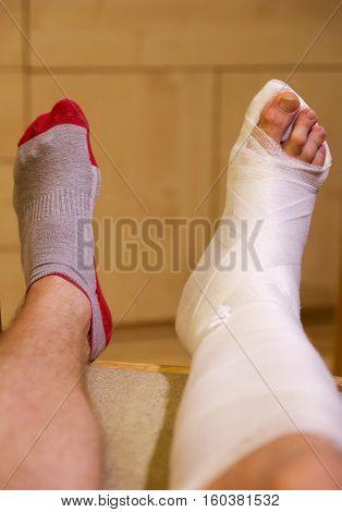 Broken leg - ankle in white gypsum