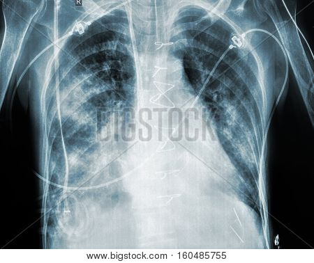 X-ray of the patient after cardiac surgery.