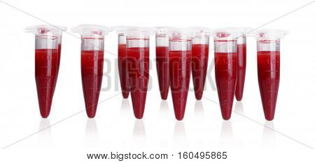 Test tubes filled with blood on gray blurred background