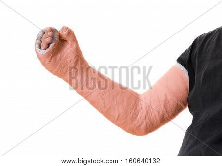 Young Man Wearing An Orange Long Arm Plaster  Fiberglass Cast