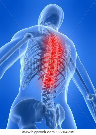 Osteoporoses