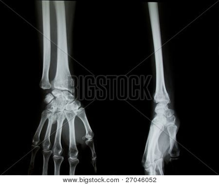 X-ray of both human arms and hands