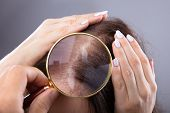 Dermatologist Examining Womans Hair poster