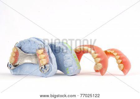 dentures 2