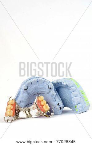 partial denture 4