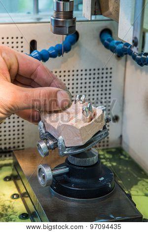 Edm Machine For Denture