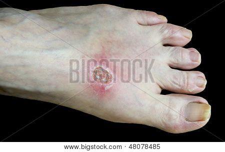 Burned Foot