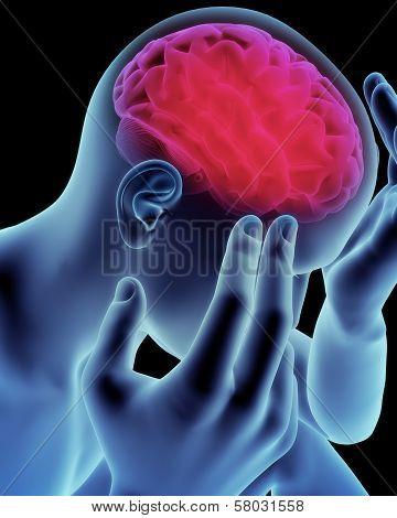 Brain head ache, migraine, Alzheimer's or dementia