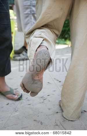 Feet Of Old Man That Climbs On Date Palm Trees