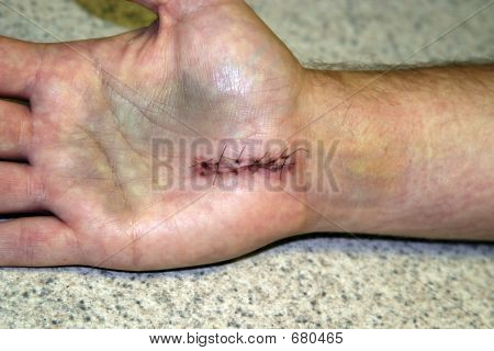 Carpal Tunnel Surgery Stiches