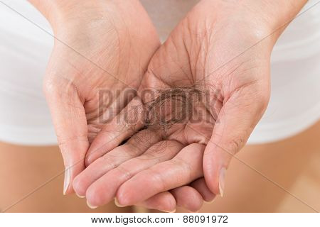 Person Hand With Loss Hair