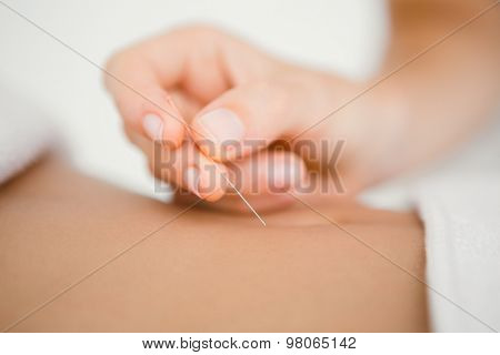 Close up view of woman holding a needle in an acupuncture therapy