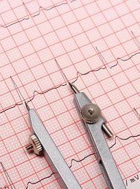pic of ekg  - Electrocardiogram graph and calipers ekg heart rhythm medicine concept - JPG