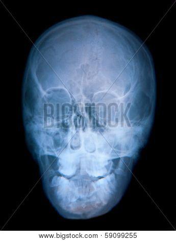 X-ray of a deformed skull