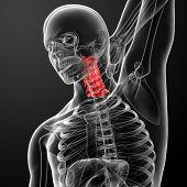 picture of roentgen  - 3d rendered medical illustration  - JPG