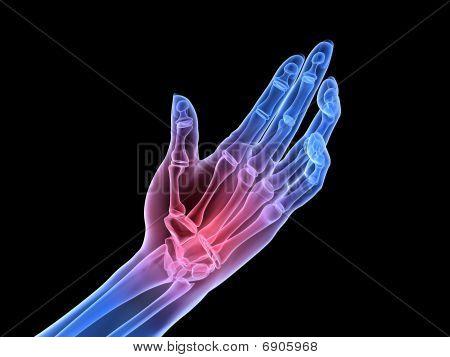 mano de rayos x - artritis