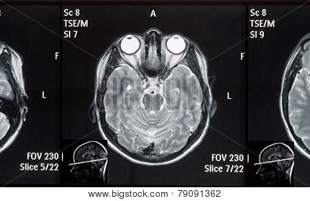 Real brain MRI slide of a young woman. Patient's and clinic's names removed