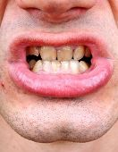 picture of gingivitis  - Diseased teeth of the patient - JPG