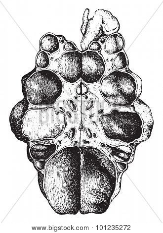 Kidney, congenital cystic disease, laid open, vintage engraved illustration.