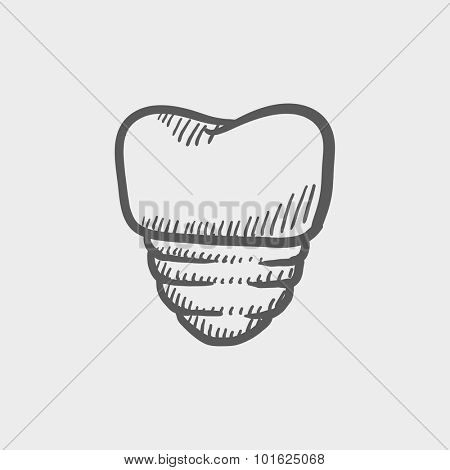Tooth implant sketch icon for web, mobile and infographics. Hand drawn vector dark grey icon isolated on light grey background.