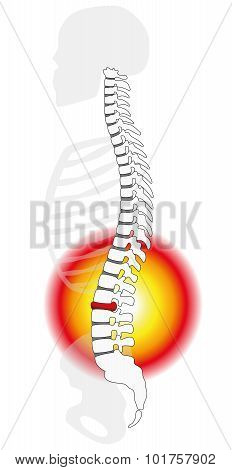 Spinal Disc Prolapse Herniation