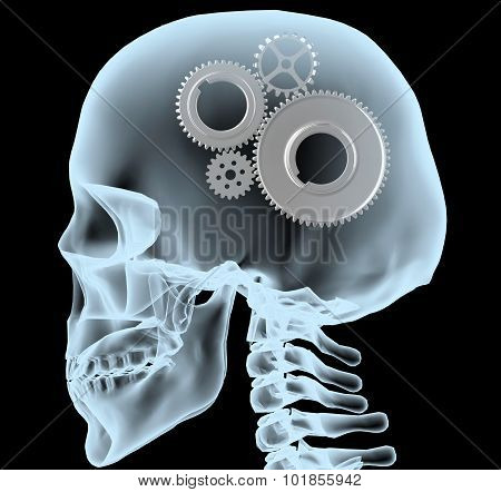 X-ray Of A Head With The Gears Instead Of The Brain