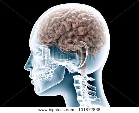 Xray Of A Womans Scull On Black With Clipping Path