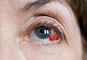 image of hemorrhage  - Human eye with a subconjunctival hemorrhage - JPG