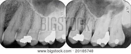 Right Upper Periodontal X-rays