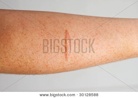 Burn Scar On The Skin Of A Persons Forearm
