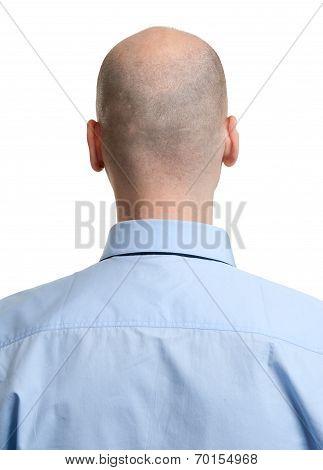 Adult Man Bald Head Rear View