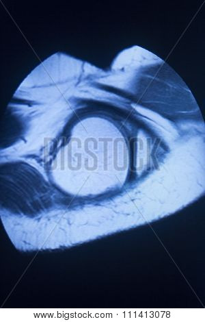 Mri Magnetic Resonance Imaging Medical Scan