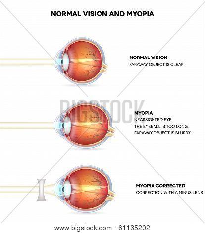 Myopia And Normal Vision