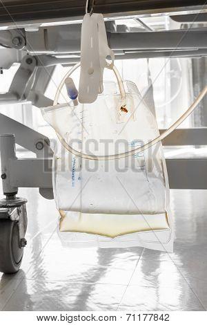 Plastic Urine Bag Hanging Under Patient Bed