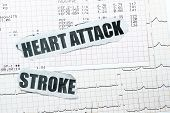 picture of hemorrhage  - Heart attack and stroke with chart concept - JPG