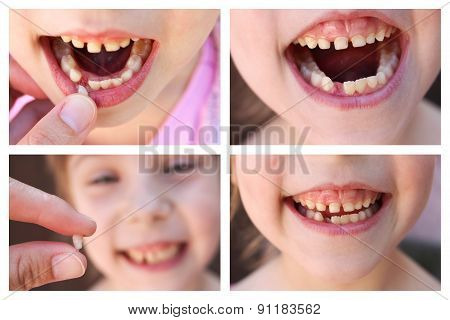 A collage of the child has lost the baby tooth. At 6 years old child loose tooth.