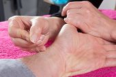 Detail Of Acupuncturist Placing A Needle In Hand Of The Patient poster