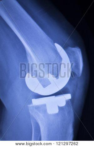 Knee Orthopedic Implant Xray Scan