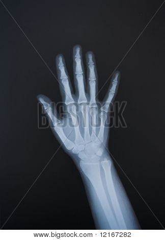 radiografía de las manos