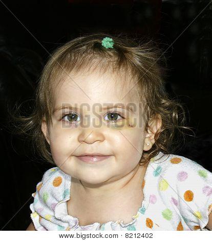 Black Eye Baby