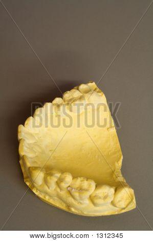 Teeth Mould