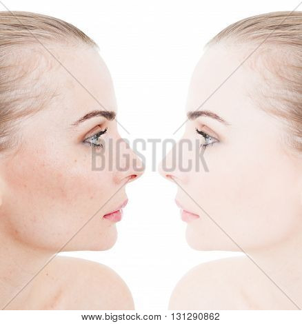 Closeup Face Of Beautiful Young Woman Before And After Retouch