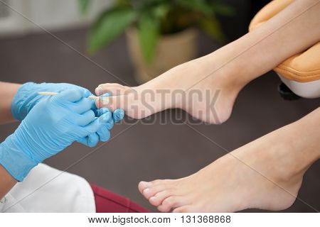 woman foot treating for fungal nail in pedicure