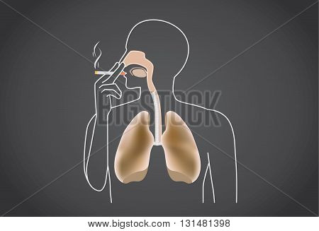 Smoker's lung is black from tar. This illustration about medical.