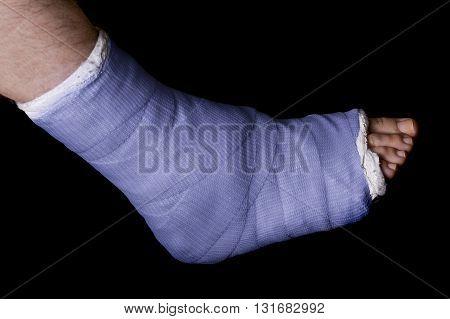 Blue Leg Cast