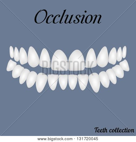 occlusion - bite closure of teeth - incisor canine premolar molar upper and lower jaw. Vector illustration for print or design of the dental clinic